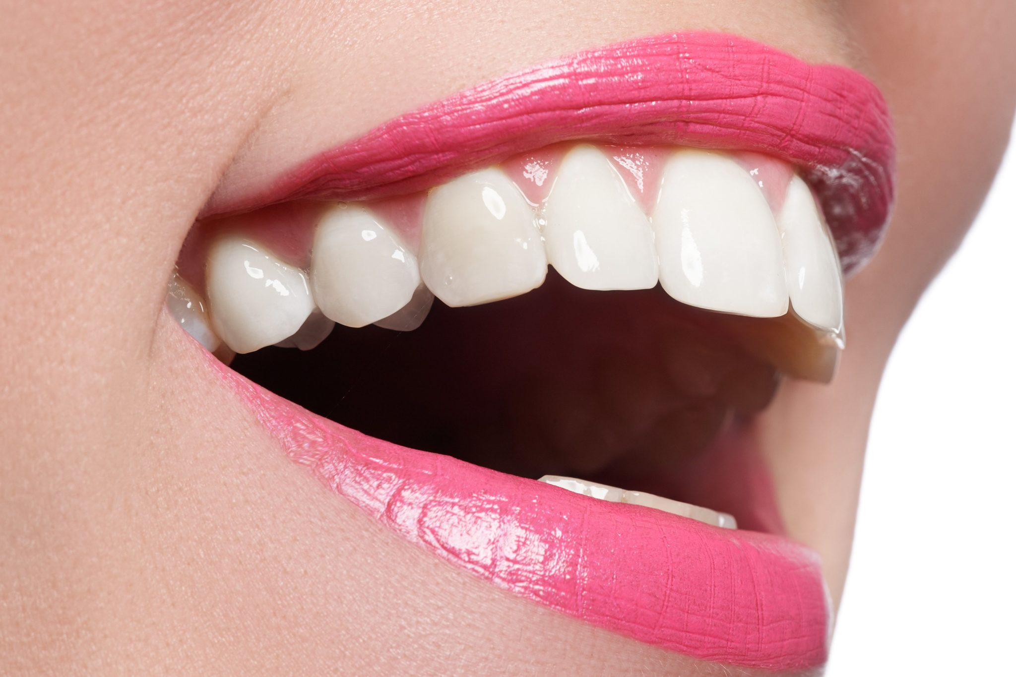How do I whiten my teeth? The first step.
