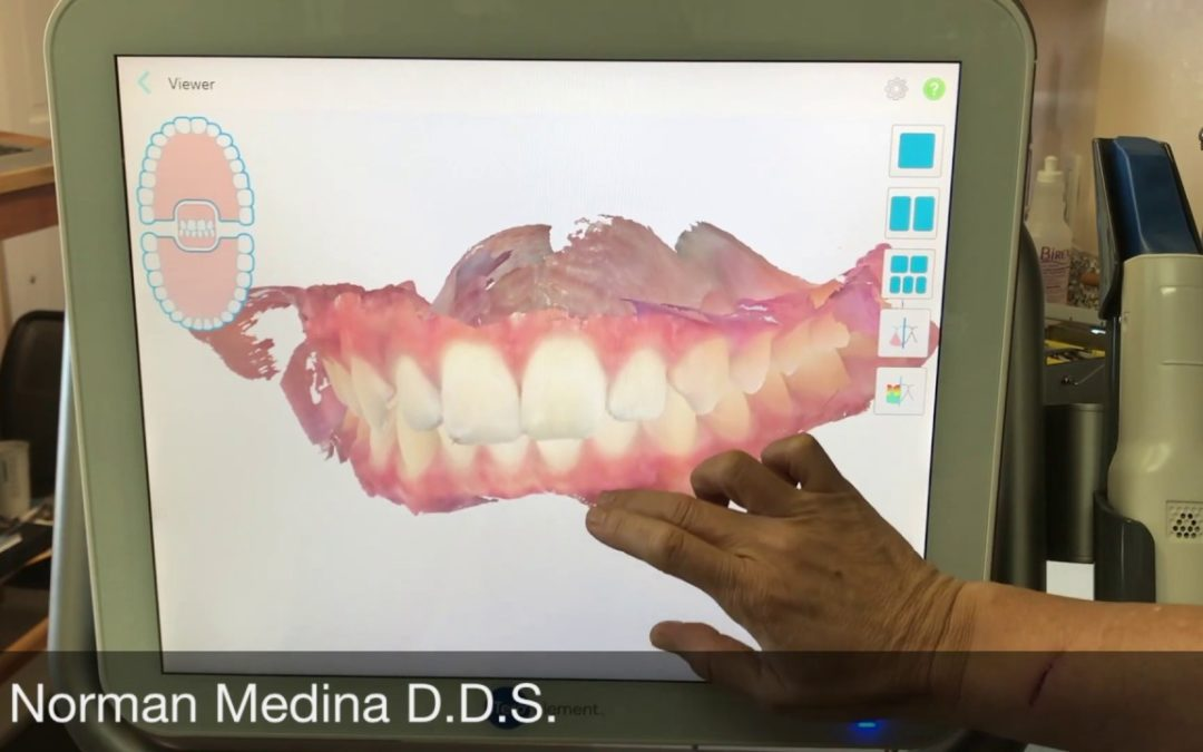 What is a Dental Health Scan? Do I have one in my dental records?