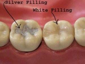 This picture shows two teeth with fillings.