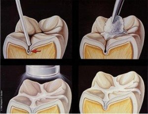 Photo illustration of dental sealants.