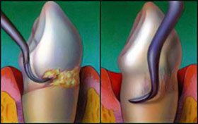 Before/after photo of a tooth having a professional dental cleaning.
