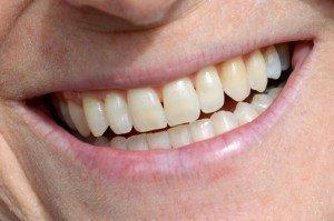 Lanita Medina RN, Smiles (Close Up)