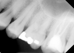 Xray showing #14 and #15