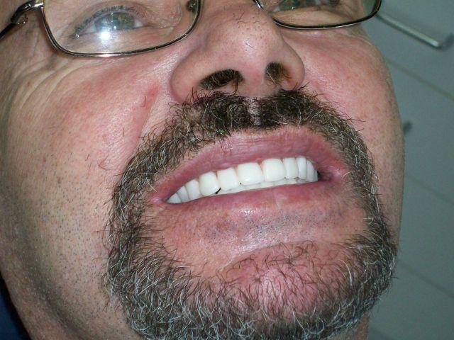 Dentures FAQ – The Fourth Visit