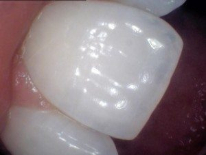 Central incisor showing translucency.