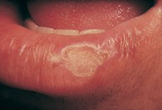 Cancer on the lip