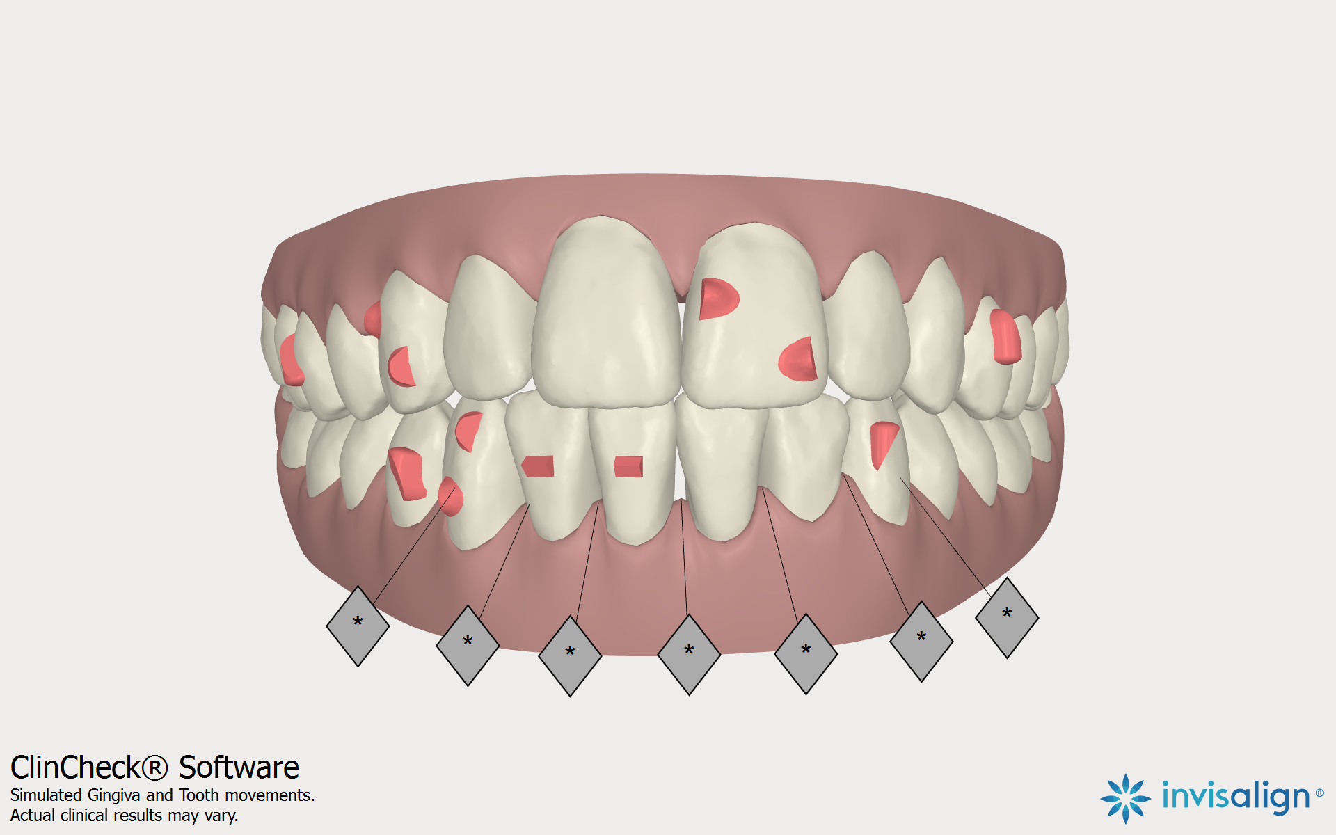 Invisalign Orthodontic Records and ClinCheck