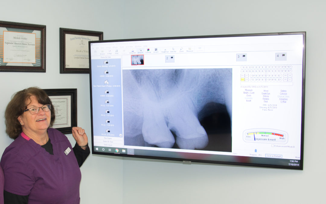 Exploring the Advantages of Digital X-rays