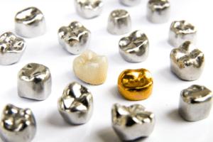 3 Benefits of Dental Crowns