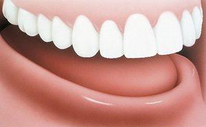 Implant Dentures Before - PatientSmart