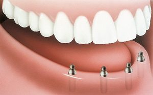 With implants and posts (abutments) - PatientSmart