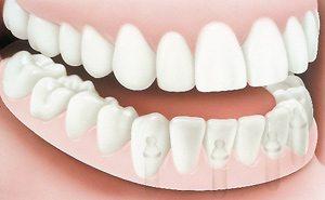 Implant Dentures After - PatientSmart