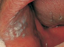 Leukoplakia (which can turn into cancer) inside the cheek