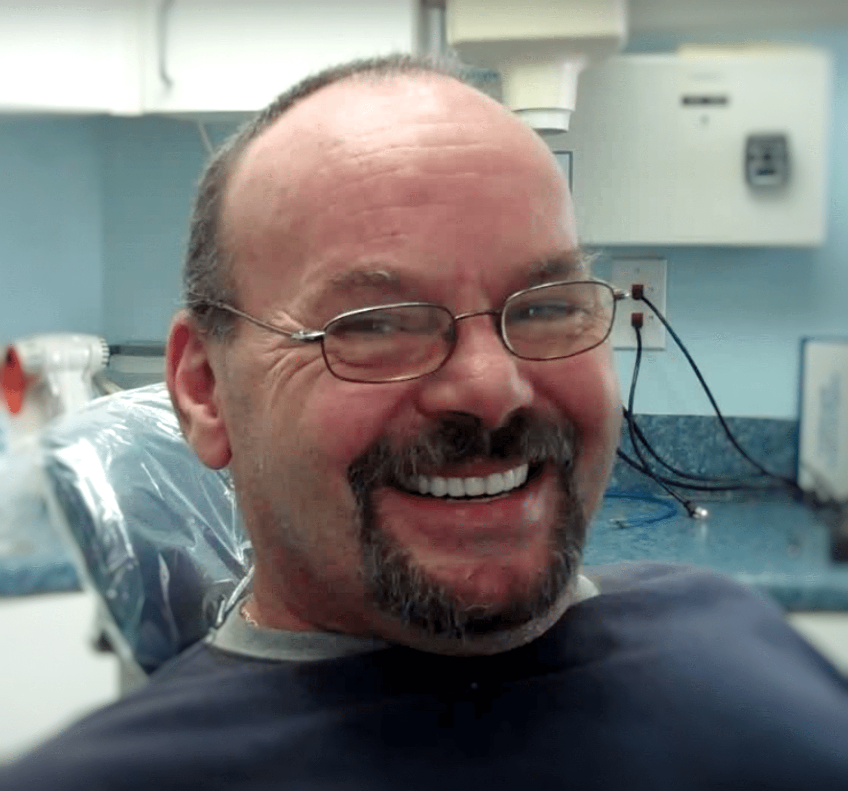 Dentures – Frequently Asked Questions FAQ – Conclusion