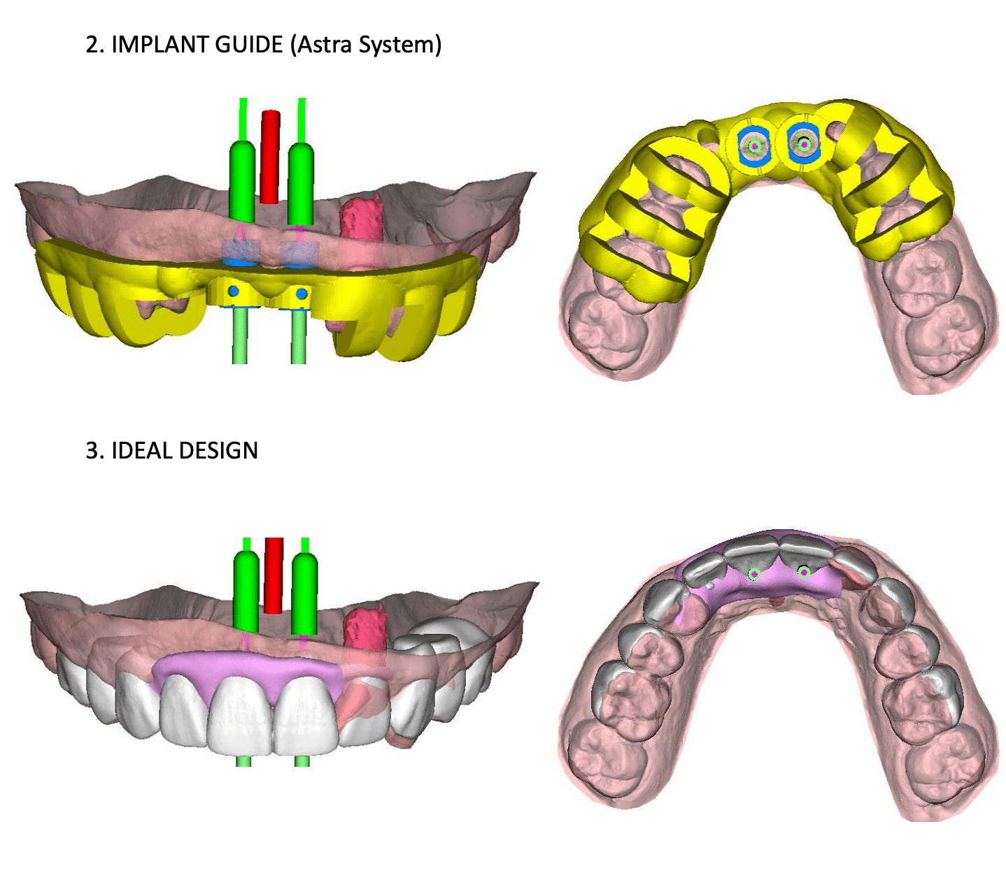 digital illustration showing computer-guided implant placement
