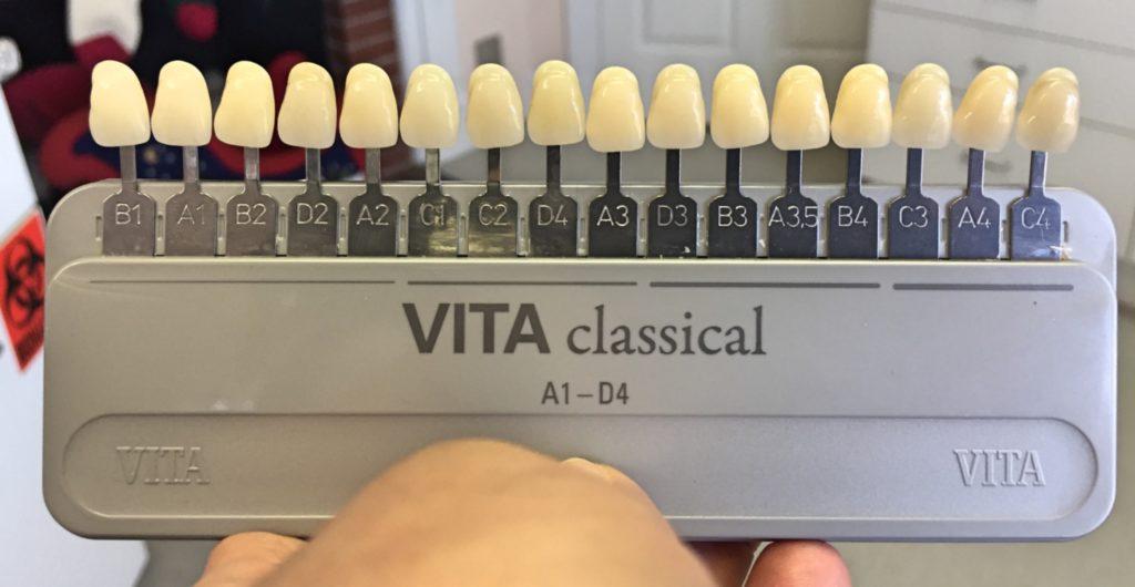 Vita Shade Guide Lightest to Darkest - Tools to whiten my teeth.
