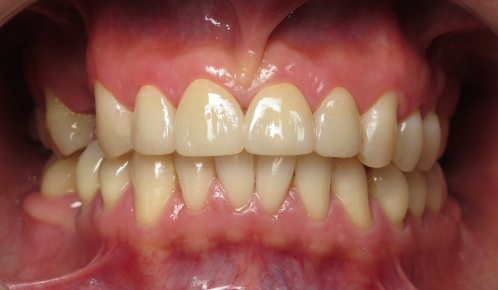 What do Zirconium Crowns look like?