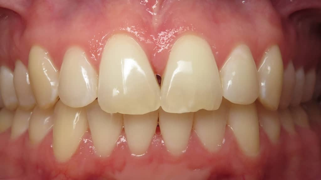 What is a dental black triangle?