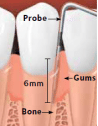 Probe shows pockets due to gum disease. Gums are inflamed and bone loss has occured.