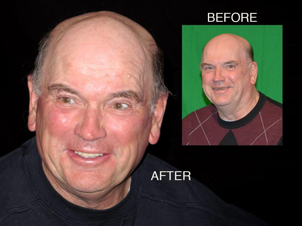 Bill Curtis's new smile makeover at Seasons of Smiles Dental before and after photos